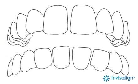 dentes espacados